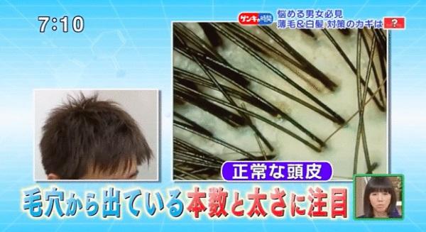 薄毛の人の髪の共通点は太い毛と細い毛がある