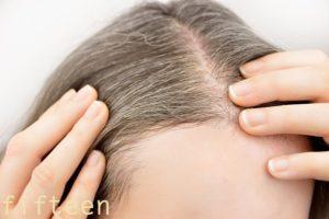 白髪と薄毛の関係